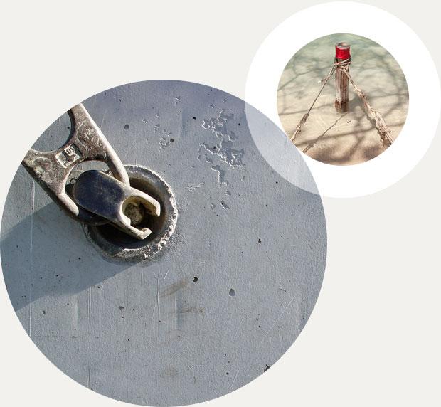 Mini Implantate Kieferorthopädie