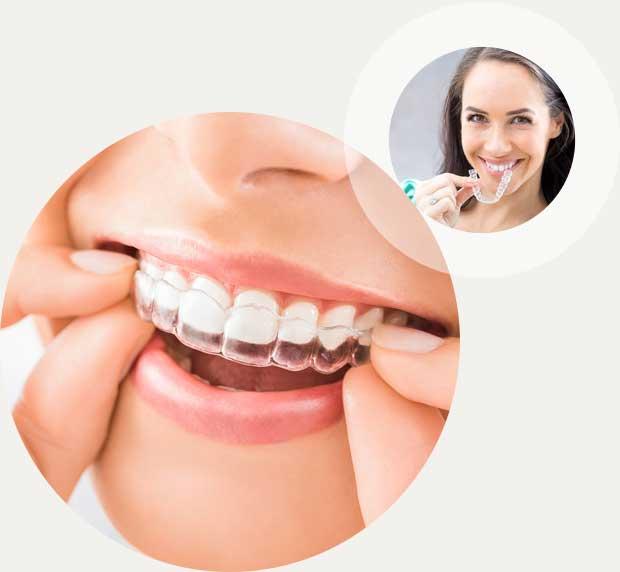 Invisalign Zahnschienen Kieferorthopädie