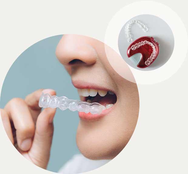 Zahnkorrektur Schienen Invisalign