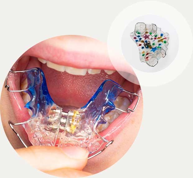 Lockere Zahnspange Kinder und Jugendliche