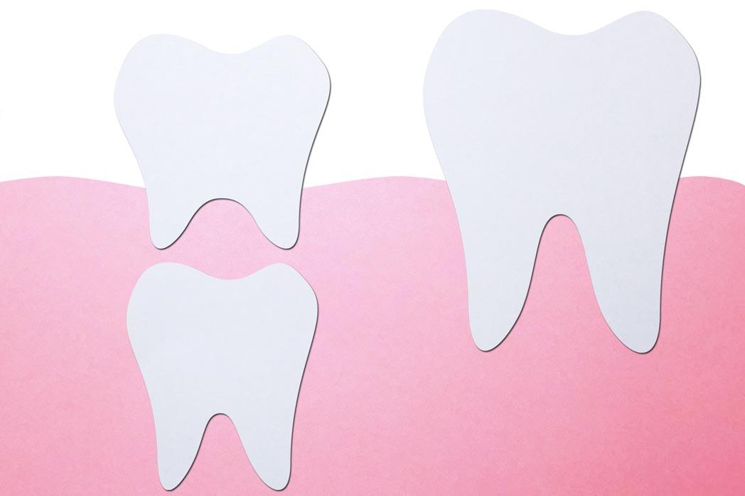 Ein Milchzahn wurde vom Zahnarzt entfernt – was jetzt?