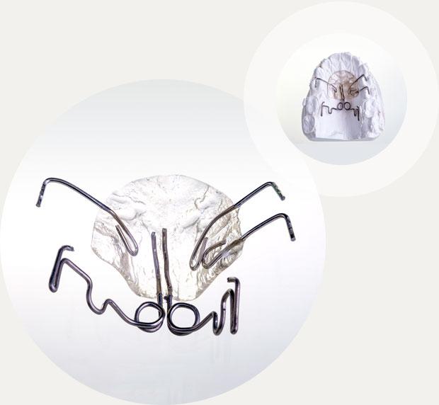 Pendulum Kieferorthopädie