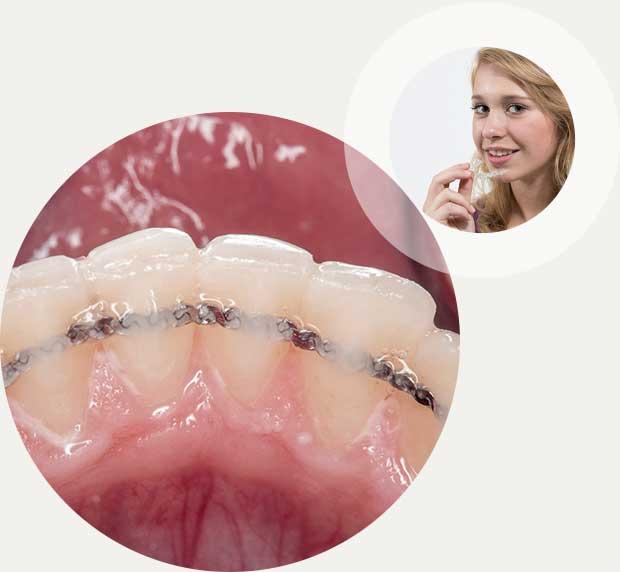 Retainer Zahnspange Behandlung
