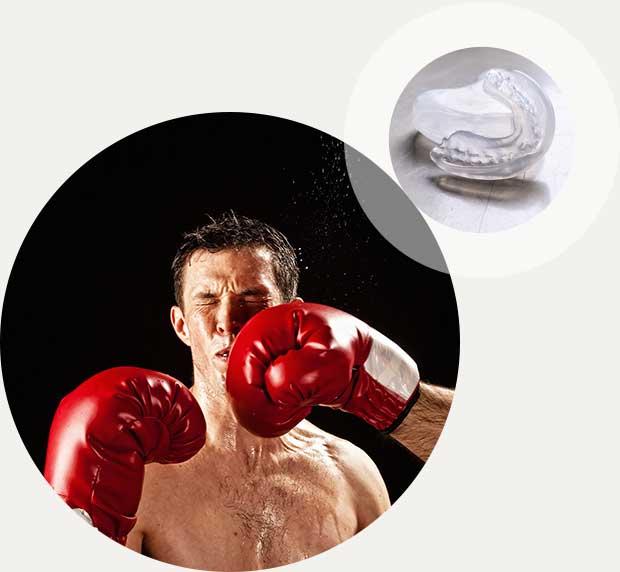 Sportmundschutz Kieferorthopädie