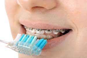 Zahnreinigung Zahnspange Zahnbürste