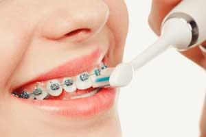 Zahnspange reinigung
